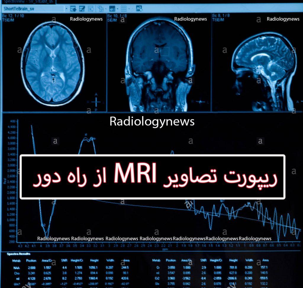 ریپورت تصاویر MRI از راه دور