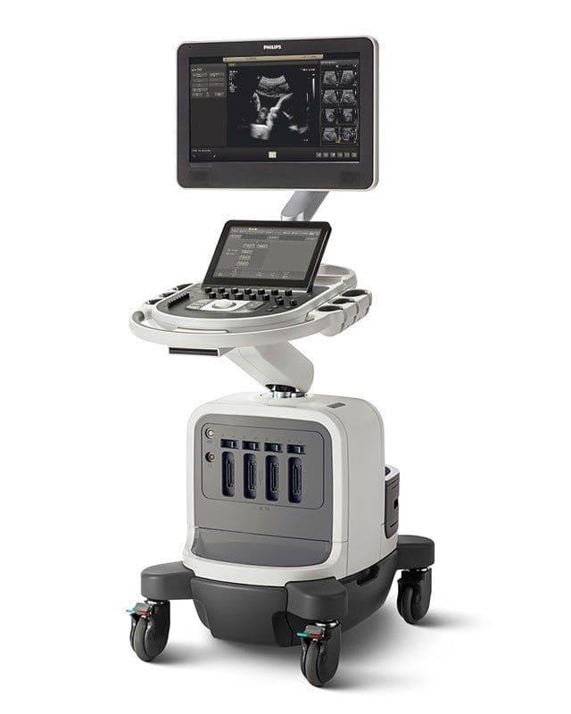 فروش دستگاه سونوگرافی فیلیپس affiniti70