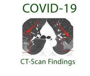 یافته های سی تی اسکن بیماران کووید19